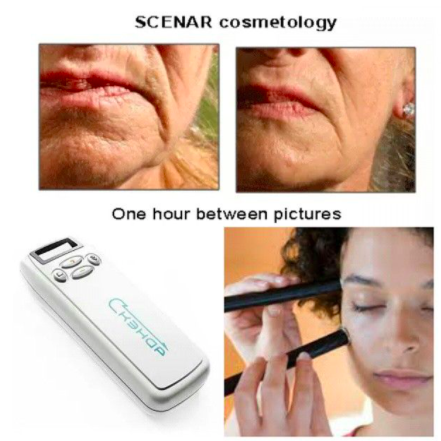 Beauty-mechanics-SCENAR-before-after